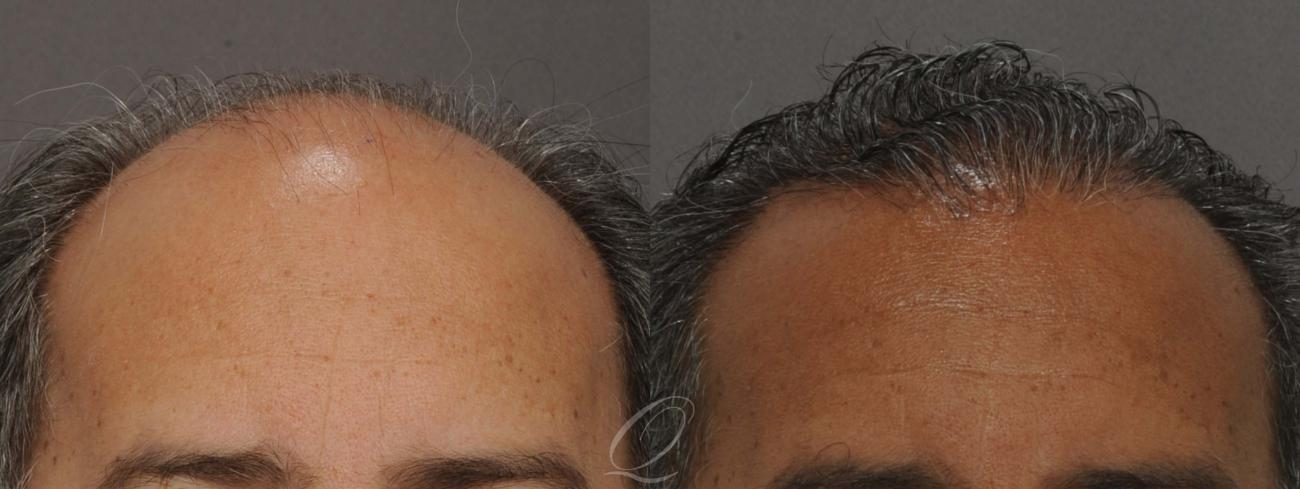 FUT Case 1012 Before & After View #1 | Rochester, NY | Quatela Center for Hair Restoration