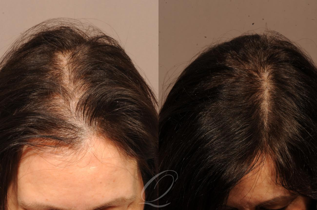 FUT Case 1121 Before & After View #1 | Rochester, NY | Quatela Center for Hair Restoration