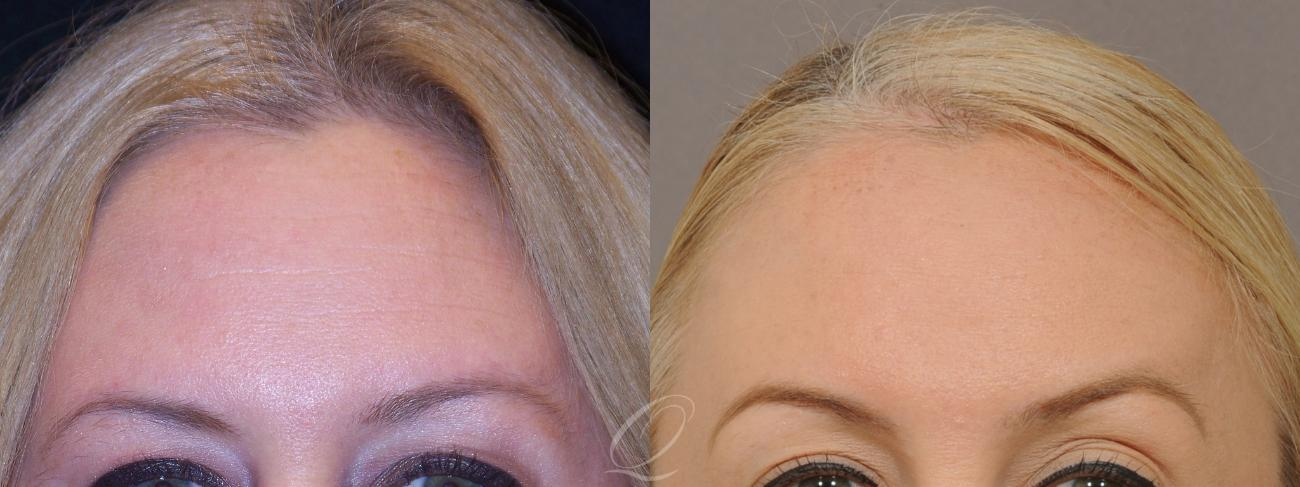 BOTOX® Case 232 Before & After View #1 | Rochester, NY | Quatela Center for Plastic Surgery