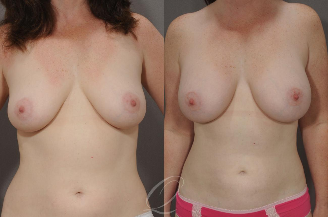 Breast Augmentation Case 1070 Before & After View #1 | Rochester, NY | Quatela Center for Plastic Surgery