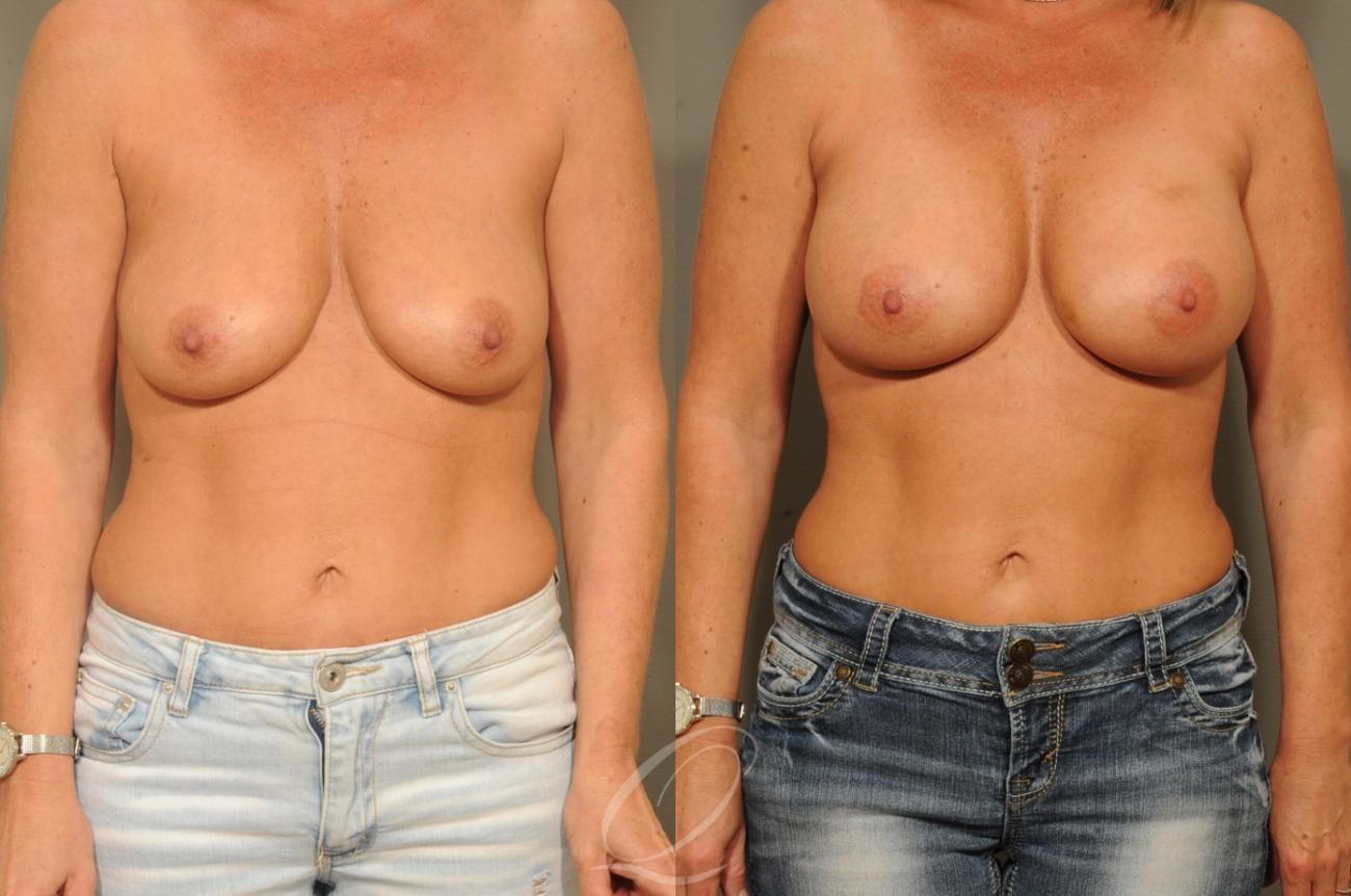 Breast Augmentation Case 1297 Before & After View #1 | Rochester, NY | Quatela Center for Plastic Surgery