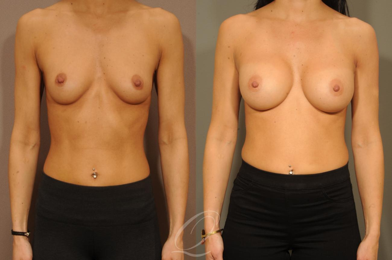 Breast Augmentation Case 1300 Before & After View #1 | Rochester, NY | Quatela Center for Plastic Surgery