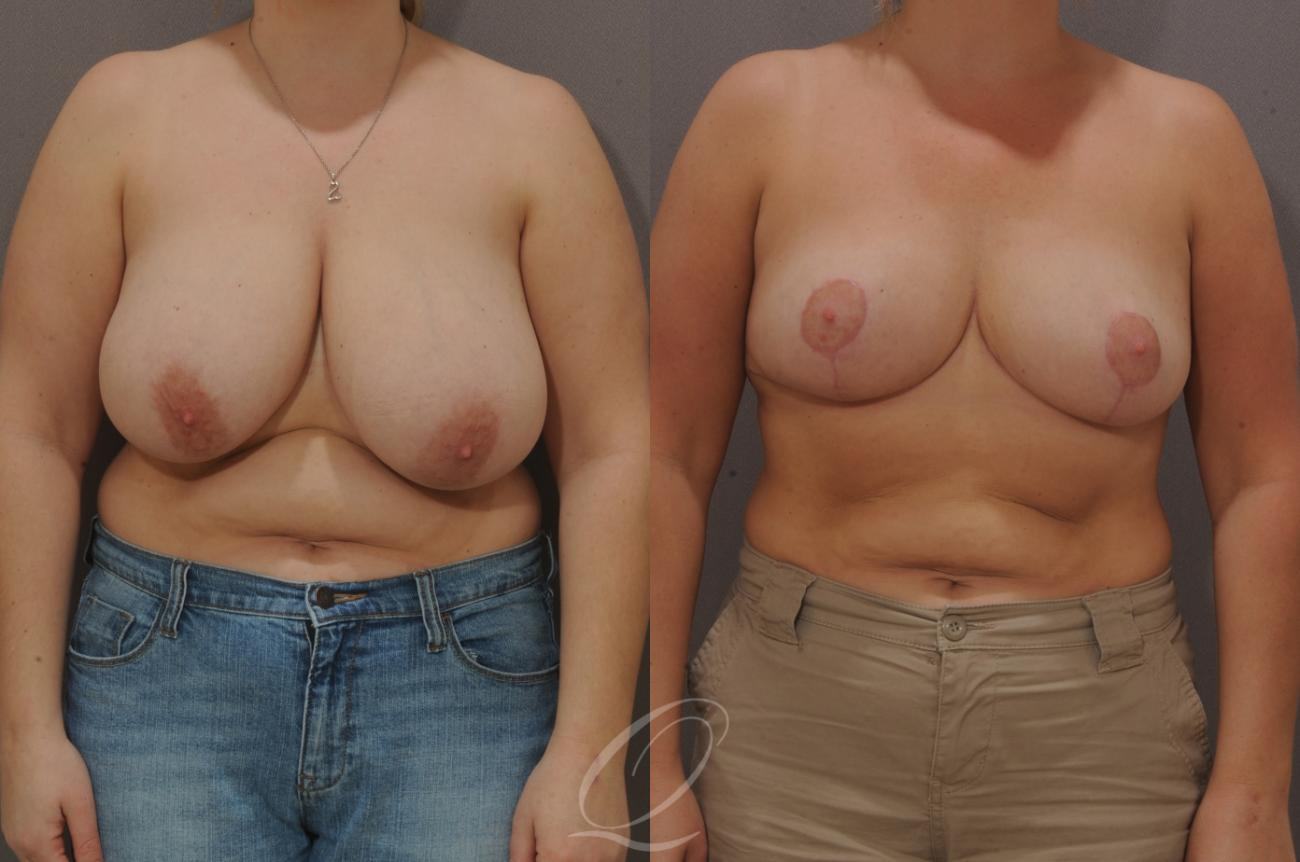 Breast Reduction Case 125 Before & After View #1 | Rochester, NY | Quatela Center for Plastic Surgery