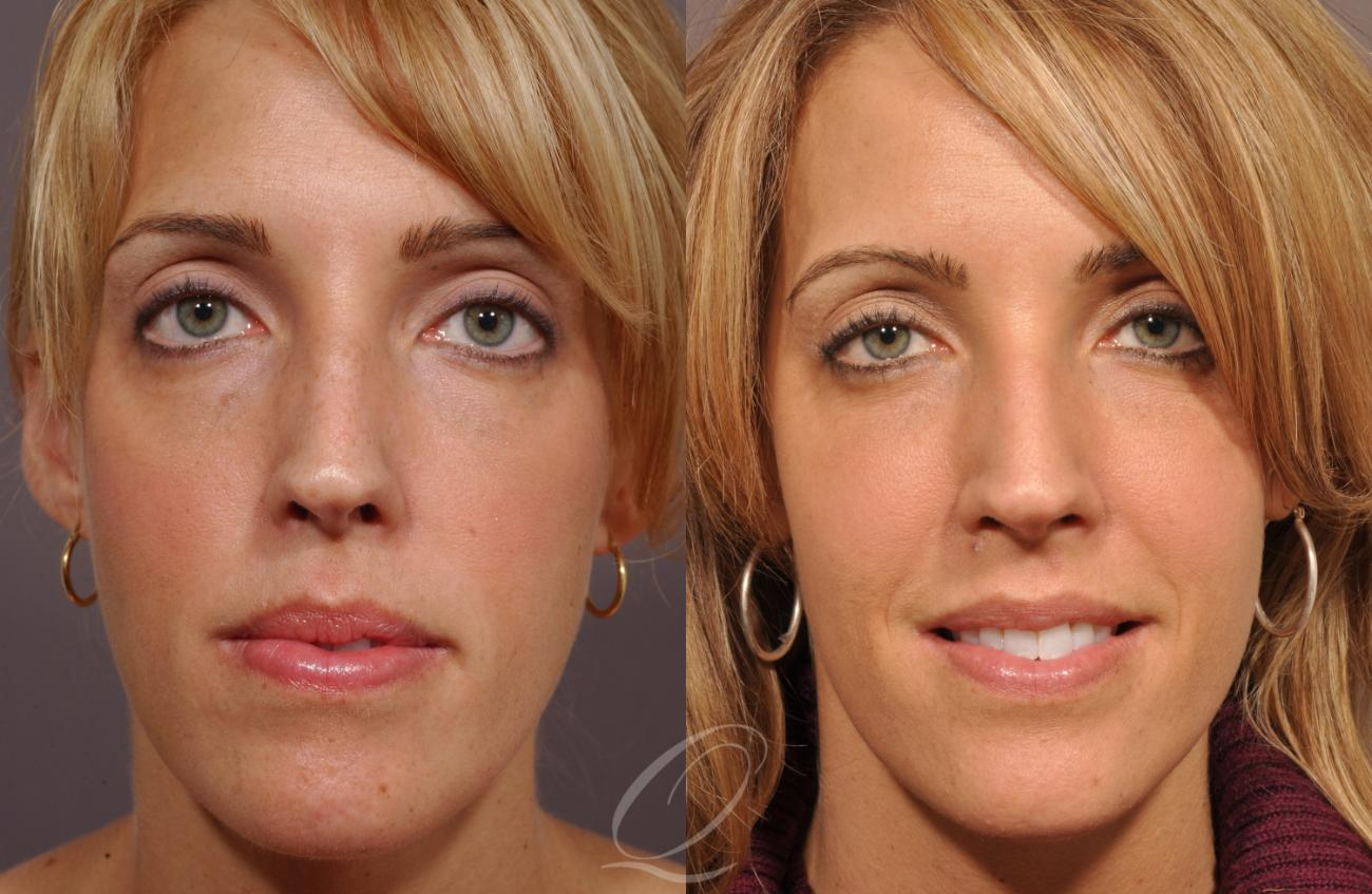 Cheek Augmentation Case 208 Before & After View #1 | Rochester, NY | Quatela Center for Plastic Surgery