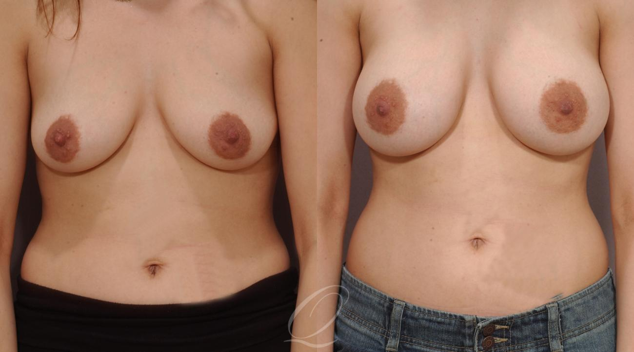 Dual Plane Breast Augmentation Case 182 Before & After View #1 | Rochester, NY | Quatela Center for Plastic Surgery