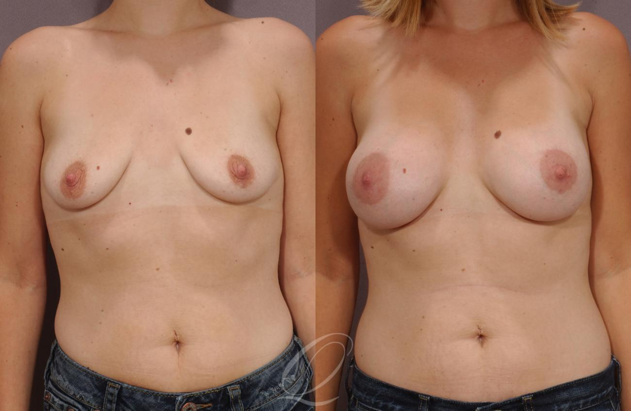 Dual Plane Breast Augmentation Case 60 Before & After View #1 | Rochester, NY | Quatela Center for Plastic Surgery