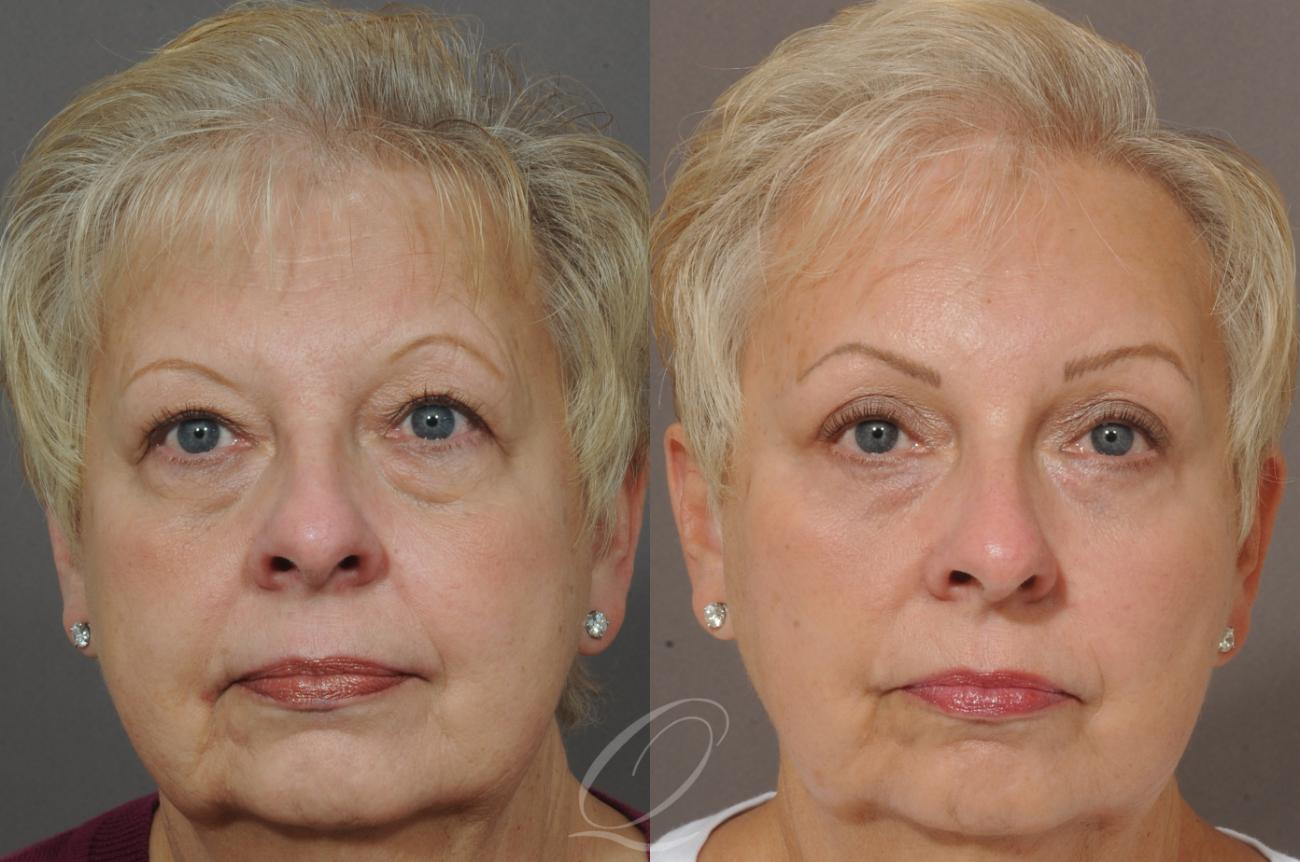 Eyelid Lift Case 146 Before & After View #1 | Rochester, NY | Quatela Center for Plastic Surgery