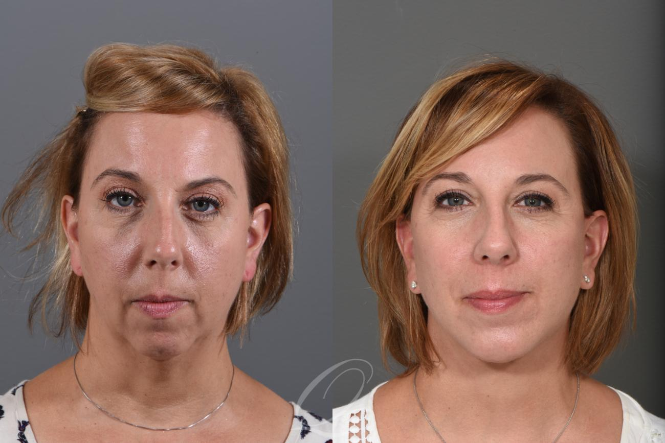 Facelift Case 1001249 Before & After View #1 | Rochester, NY | Quatela Center for Plastic Surgery