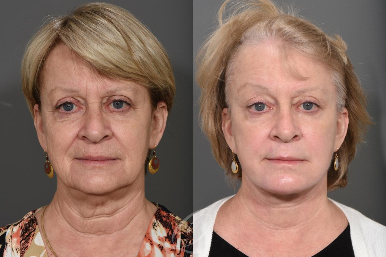 Facelift Case 1001267 Before & After View #1 | Rochester, NY | Quatela Center for Plastic Surgery
