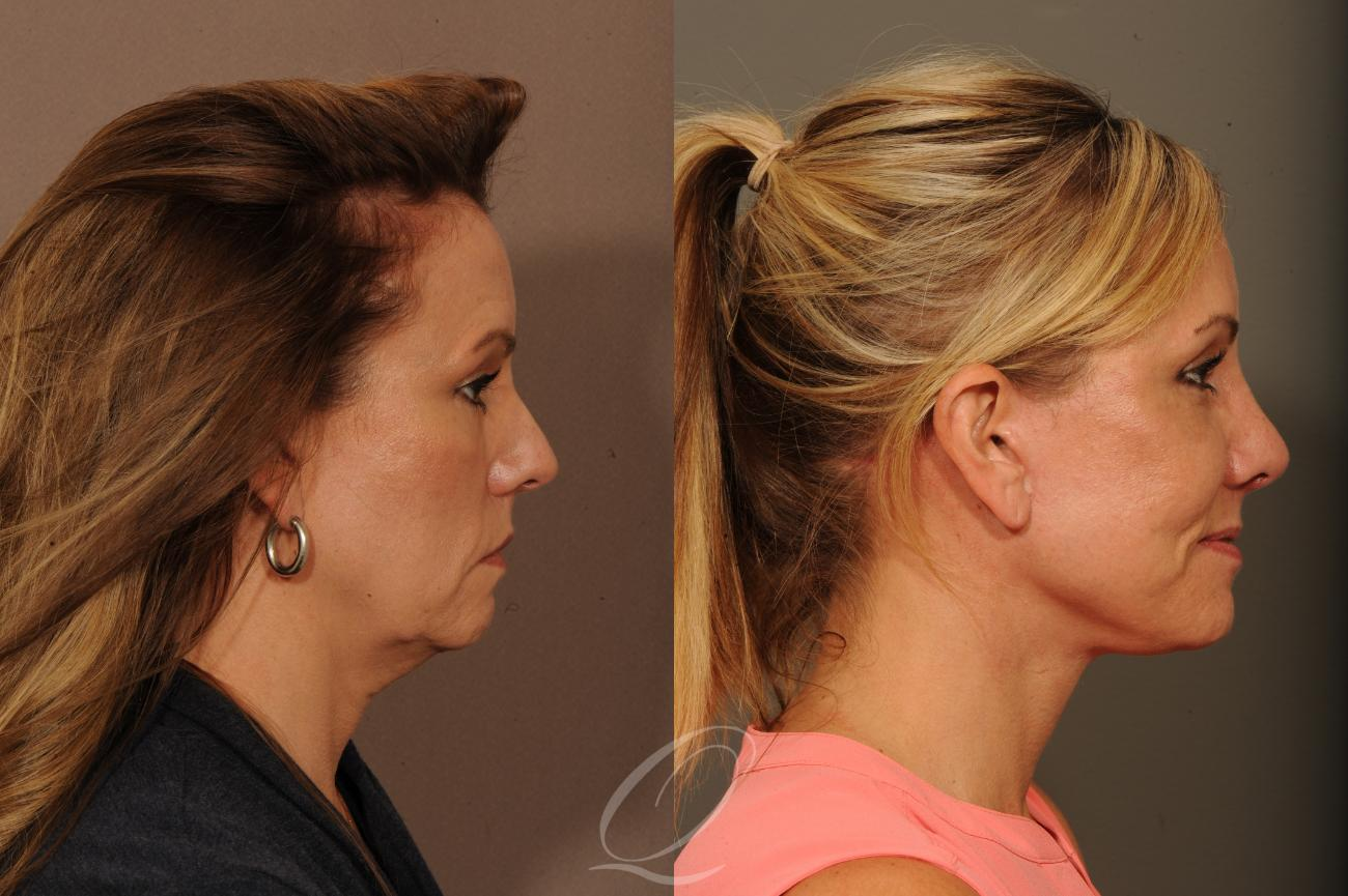 Facelift Case 1001272 Before & After View #1 | Rochester, NY | Quatela Center for Plastic Surgery