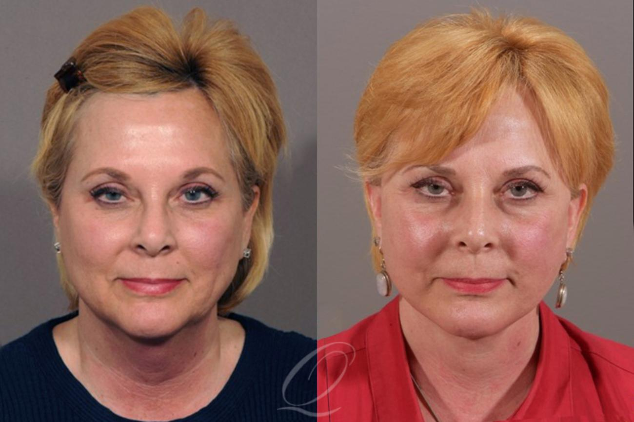 Facelift Case 1301 Before & After View #1 | Rochester, NY | Quatela Center for Plastic Surgery