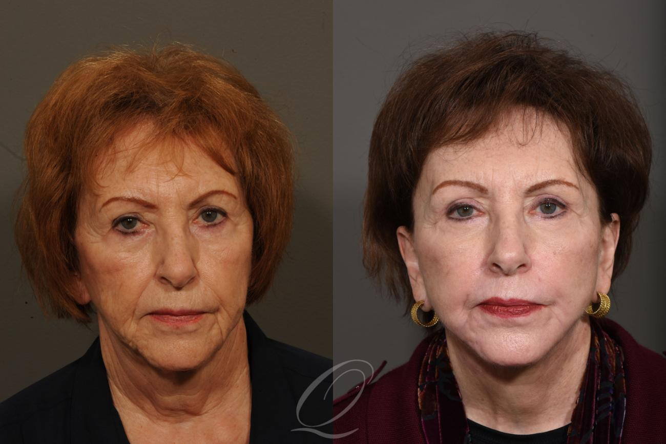 Facelift Case 1325 Before & After View #1 | Rochester, NY | Quatela Center for Plastic Surgery