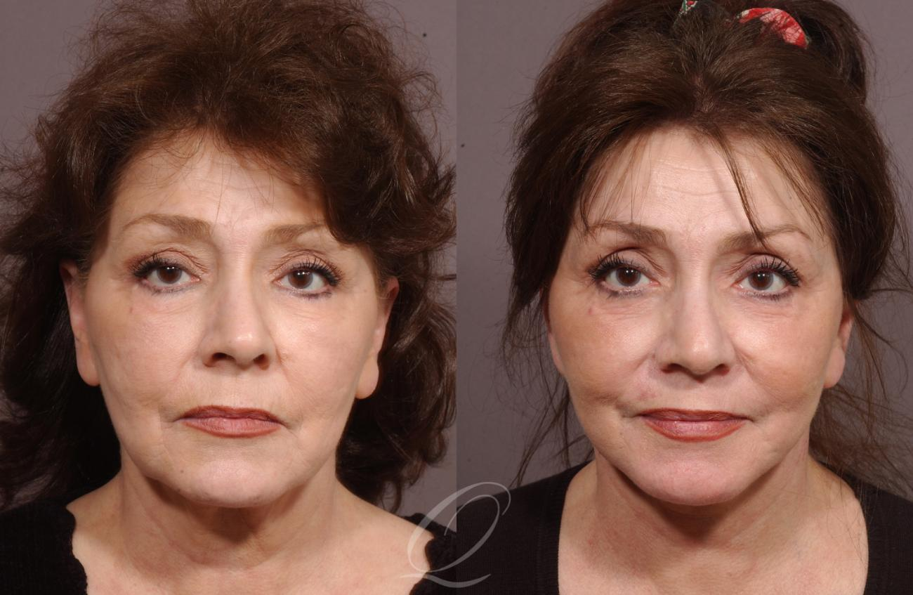 Facelift Case 19 Before & After View #1 | Rochester, NY | Quatela Center for Plastic Surgery