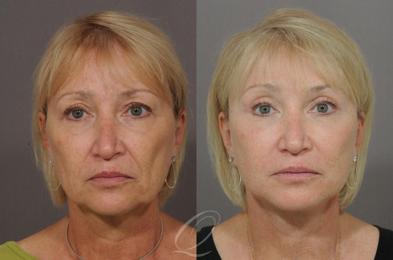 Facelift Case 22 Before & After View #1 | Rochester, NY | Quatela Center for Plastic Surgery