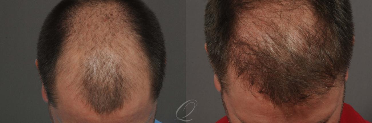 FUT Case 1020 Before & After View #1 | Rochester, NY | Quatela Center for Hair Restoration