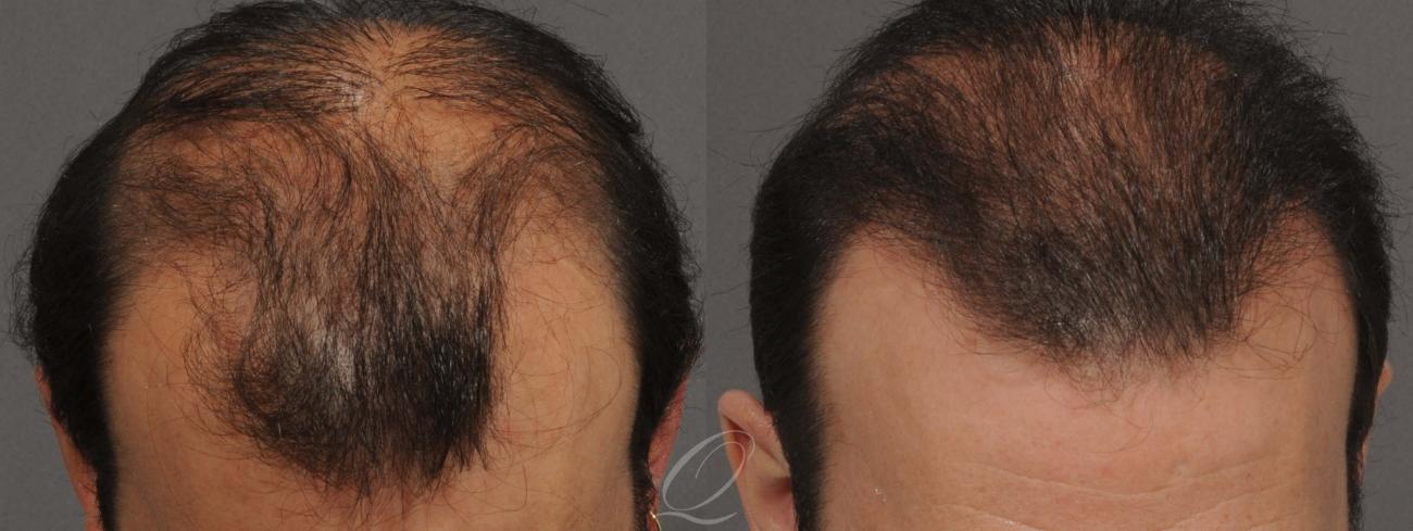 FUT Case 1031 Before & After View #1 | Rochester, NY | Quatela Center for Hair Restoration
