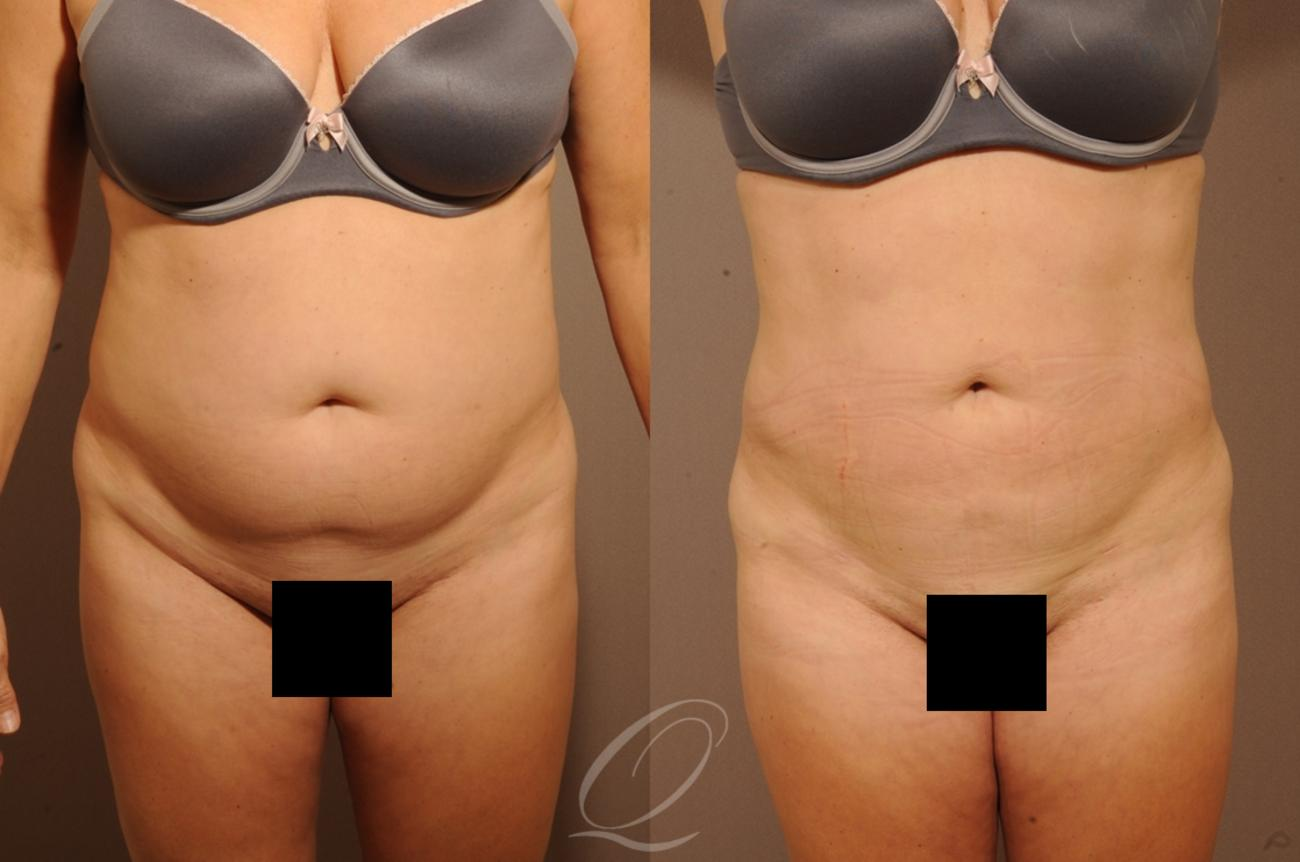 Liposuction Case 1257 Before & After View #1 | Rochester, NY | Quatela Center for Plastic Surgery