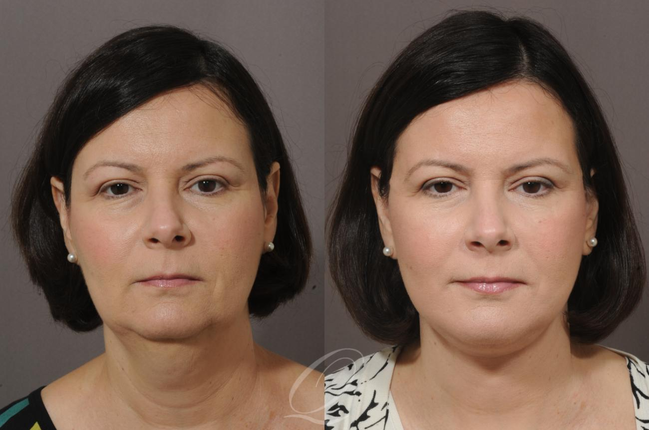 Neck Lift Case 58 Before & After View #1 | Rochester, NY | Quatela Center for Plastic Surgery