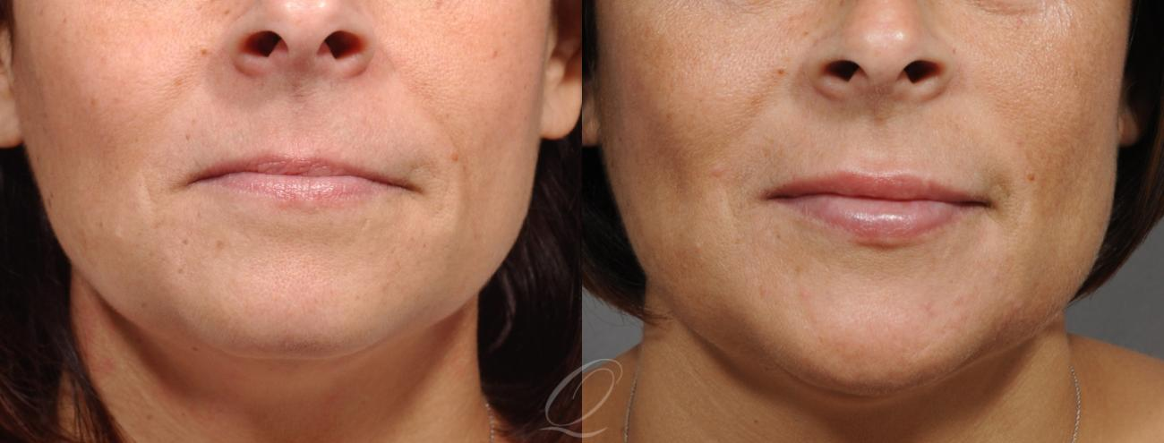 Restylane® Case 223 Before & After View #1 | Rochester, NY | Quatela Center for Plastic Surgery