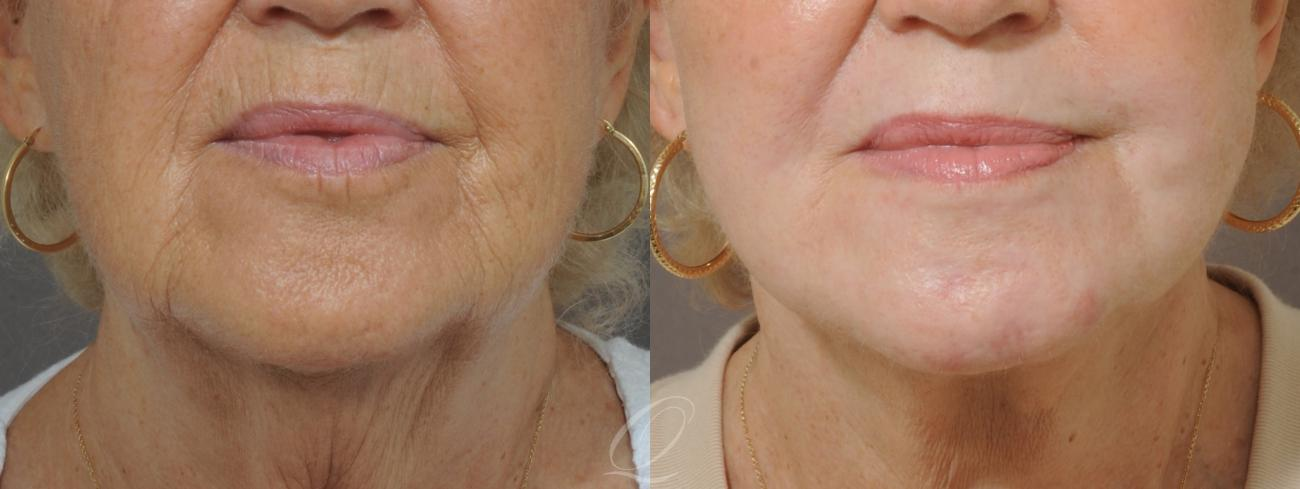 Skin Resurfacing Case 180 Before & After View #1 | Rochester, NY | Quatela Center for Plastic Surgery