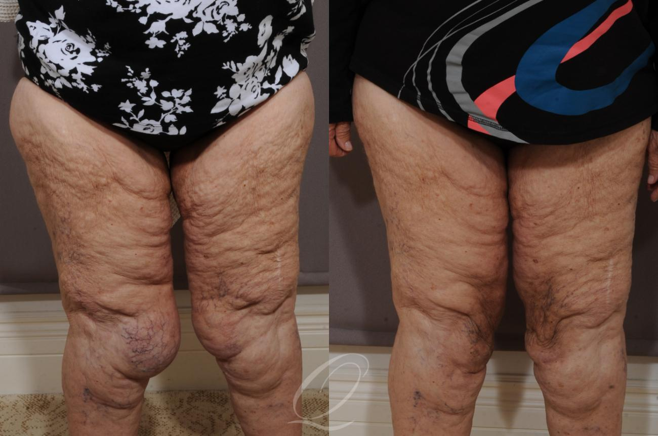 SmartLipo Laser Body Sculpting Case 221 Before & After View #1 | Rochester, NY | Quatela Center for Plastic Surgery