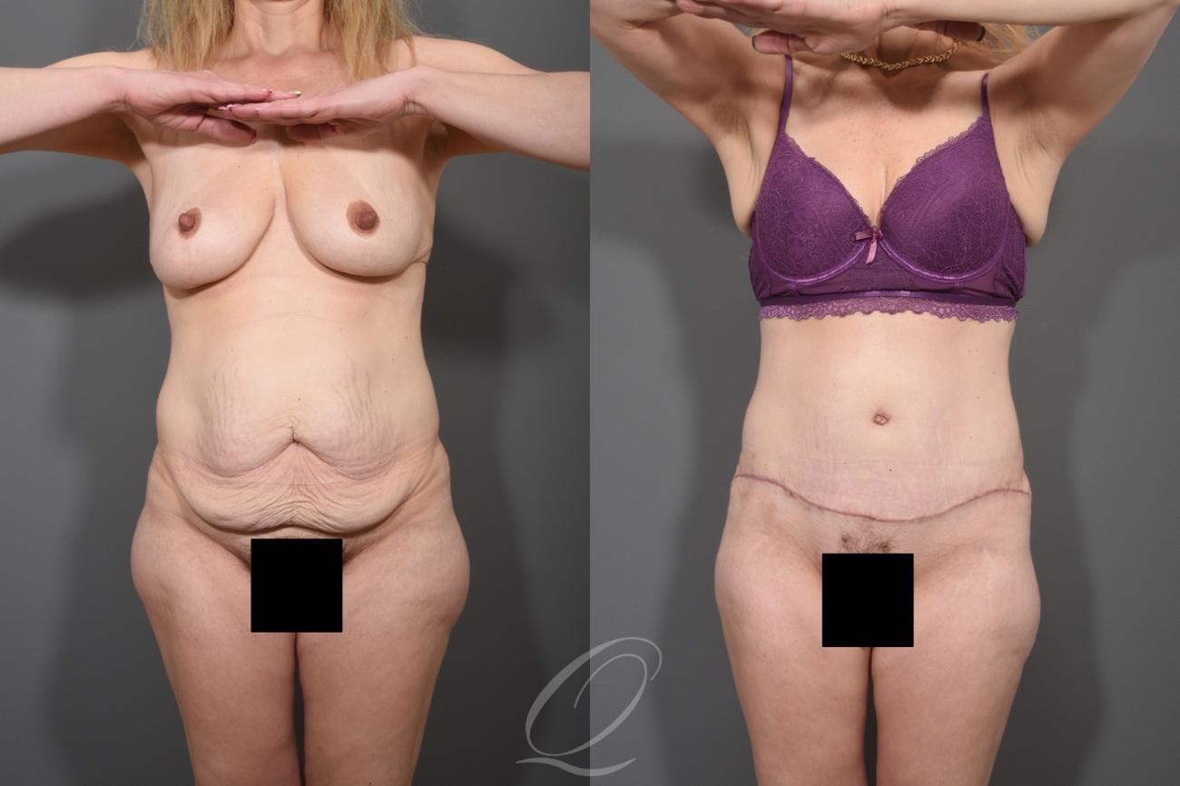 Tummy Tuck Case 1001258 Before & After View #1 | Rochester, NY | Quatela Center for Plastic Surgery