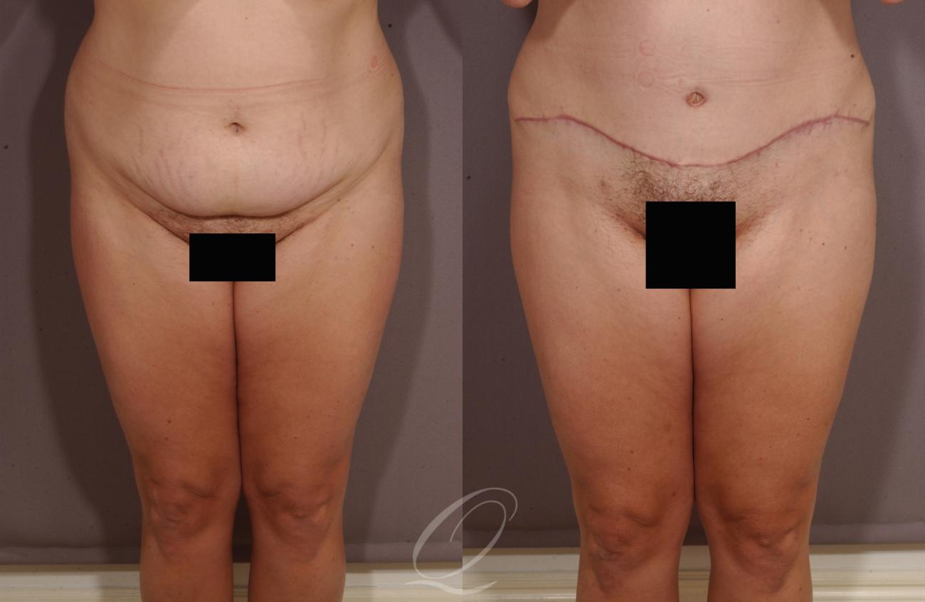 Tummy Tuck Case 153 Before & After View #1 | Rochester, NY | Quatela Center for Plastic Surgery