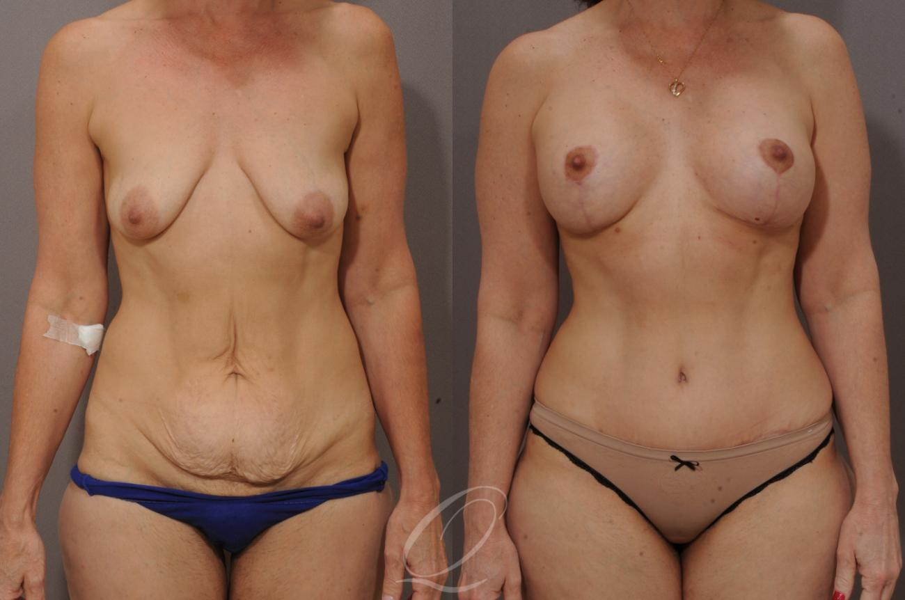 Tummy Tuck Case 267 Before & After View #1 | Rochester, NY | Quatela Center for Plastic Surgery