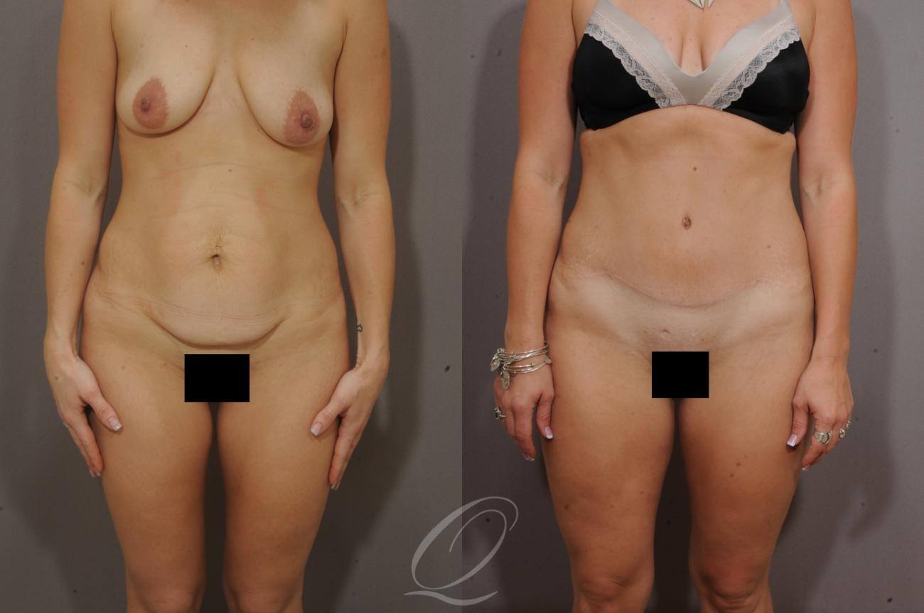 Tummy Tuck Case 269 Before & After View #1 | Rochester, NY | Quatela Center for Plastic Surgery